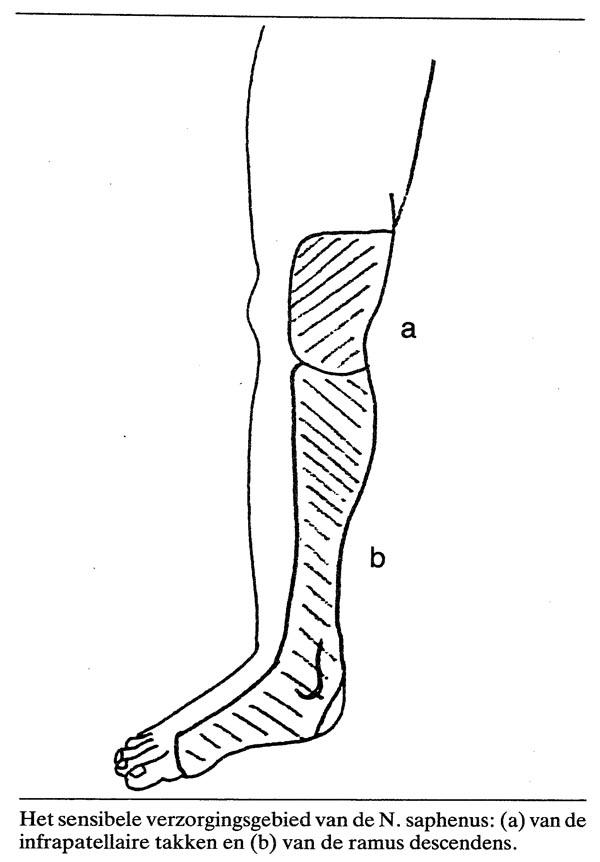 Pseudo-artritis van de knie ten gevolge van compressieneuropathie ...