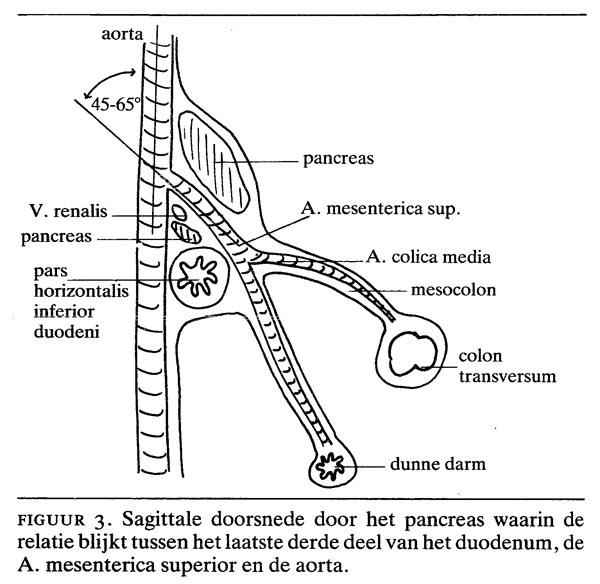 Het syndroom van Wilkie | Nederlands Tijdschrift voor Geneeskunde