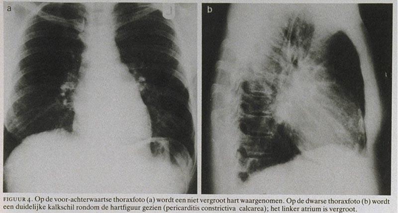 vocht achter de longen oorzaak