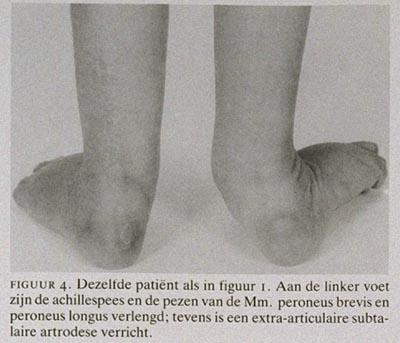 wondinfectie symptomen