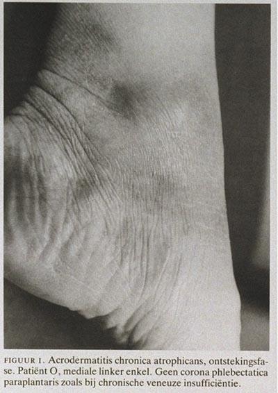 Acrodermatitis chronica atrophicans  The Lancet