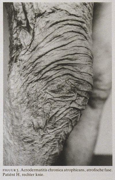 Acrodermatitis Chronica Atrophicans Background