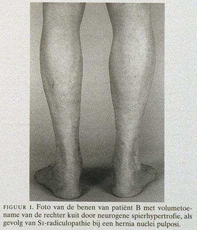 uitvalsverschijnselen benen