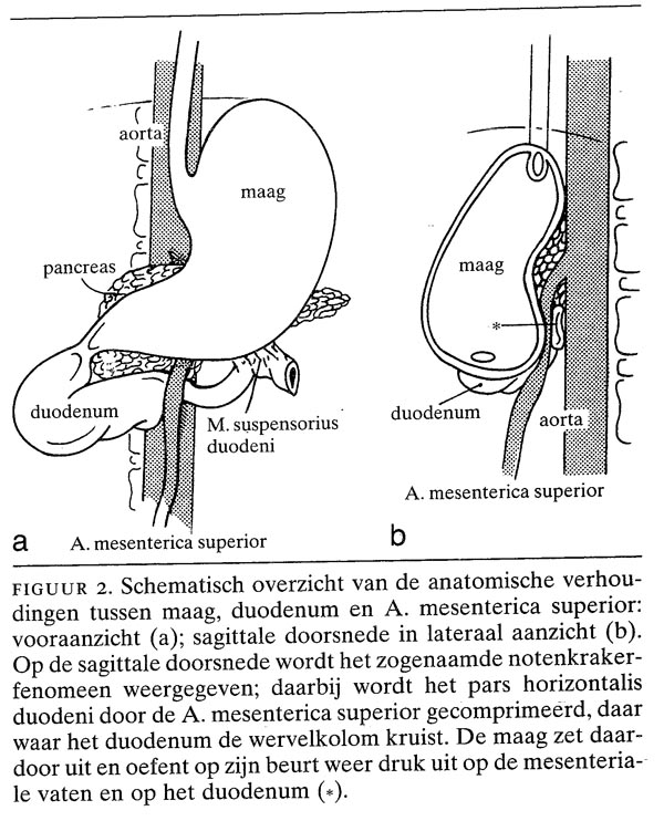 Acute maagdilatatie en A. mesenterica superior-syndroom bij ...
