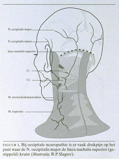 druk in achterhoofd en nek