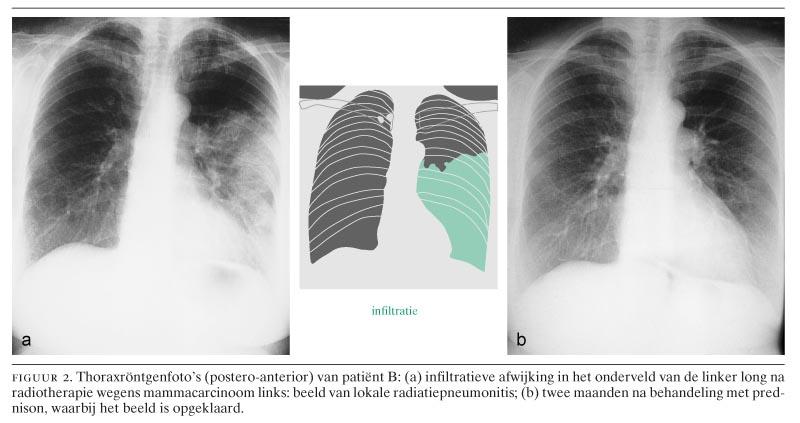 pijn na bestraling longen