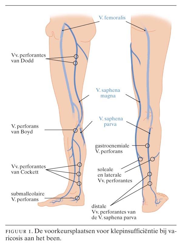Fysische diagnostiek - de bandjesproeven bij varices | Nederlands ...