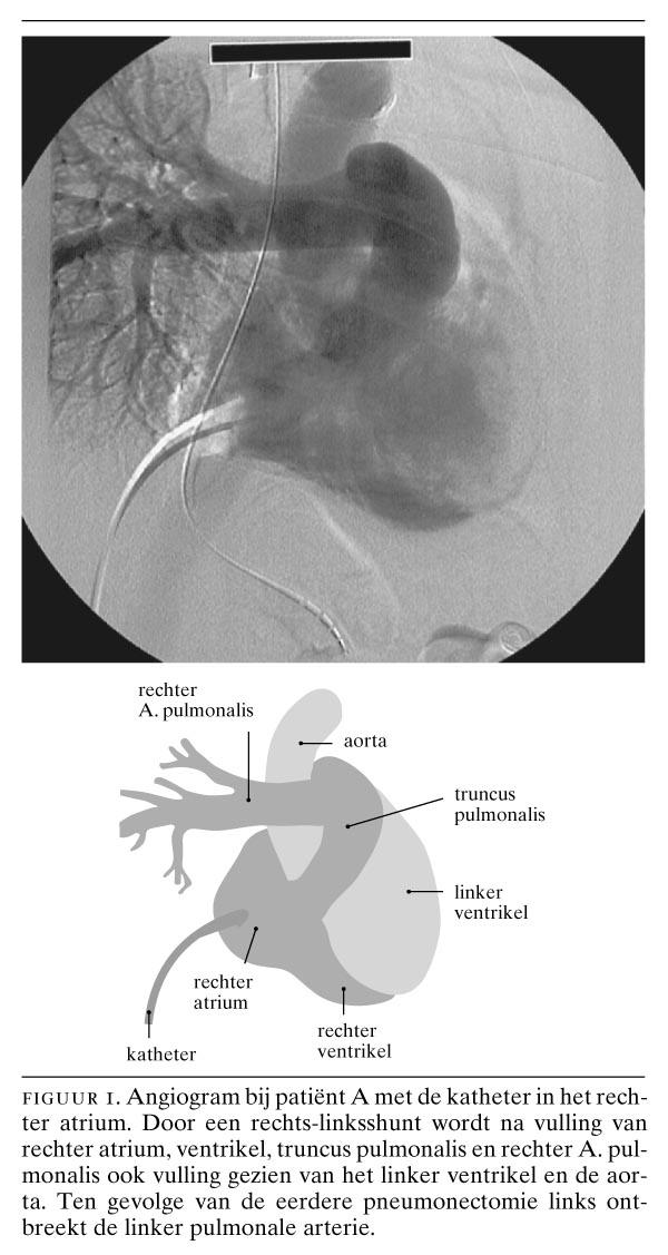 Dyspnoe na pneumonectomie door een atriumseptumdefect | Nederlands ...
