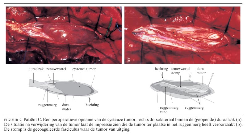 tumor ruggenwervel symptomen