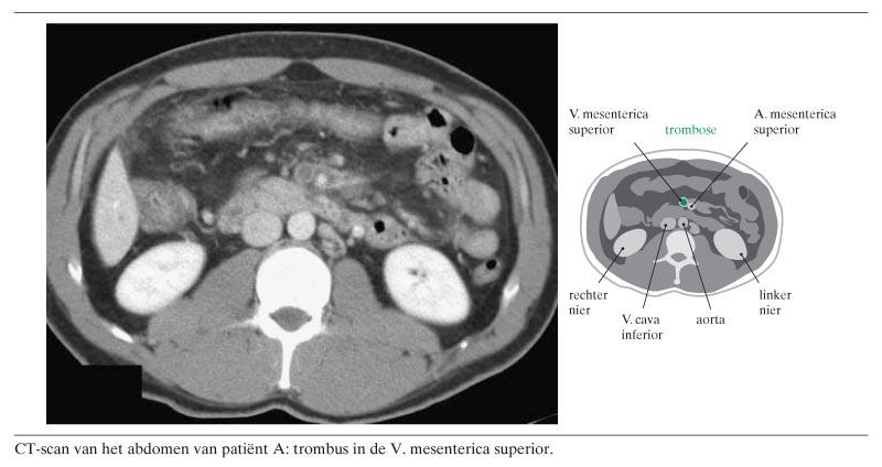 Behandeling van mesenteriale trombose