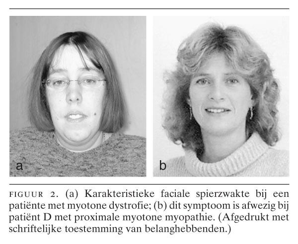 myotone dystrofie type 1 levensverwachting