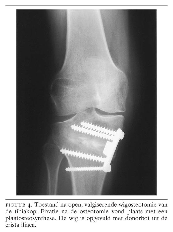 osteocondroza genunchiului 3 grade