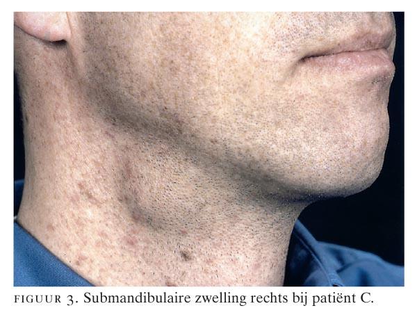 zwelling onder kaak