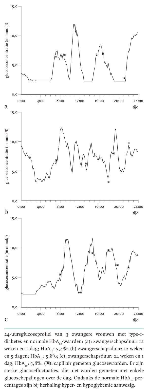 glucosawaarden tijdens zwangerschapsdiabetes