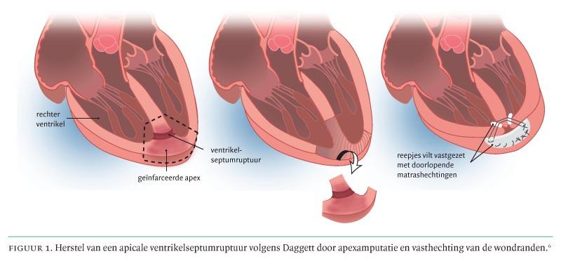 Een nieuw hartgeruis bij een pati nt met hartfalen niet for Hartfalen prognose