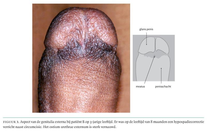 Turkse porno tube