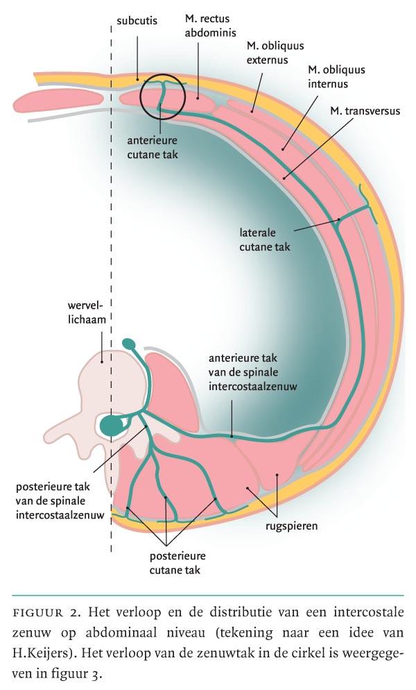 Abdominale Intercostale Neuralgie Een Vergeten Oorzaak Van Buikpijn