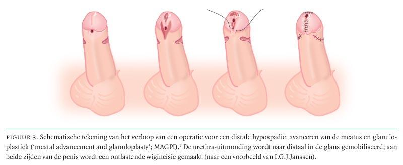 Hypospadie en congenitale kromstand van de penis bij kinderen en ...