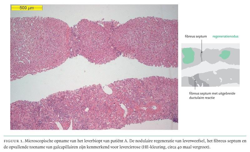 steatose lever behandeling