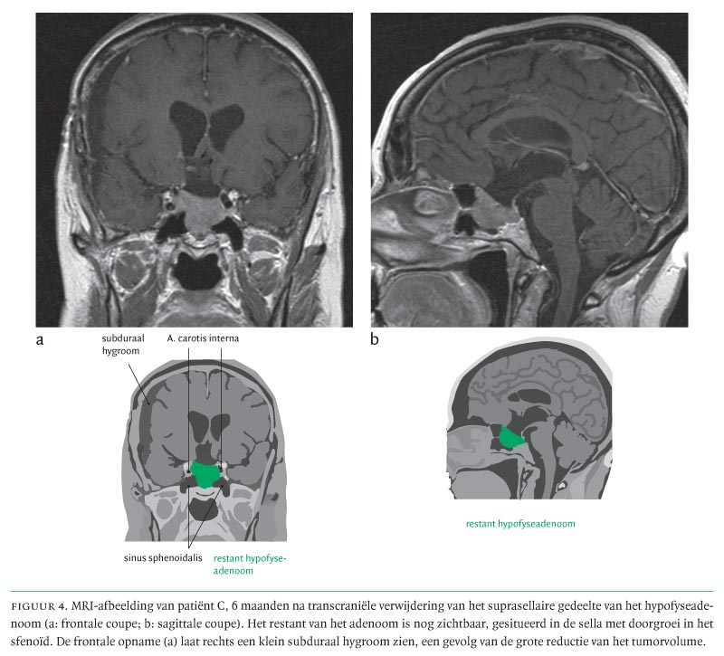 Dating subdurale hematoom MRI