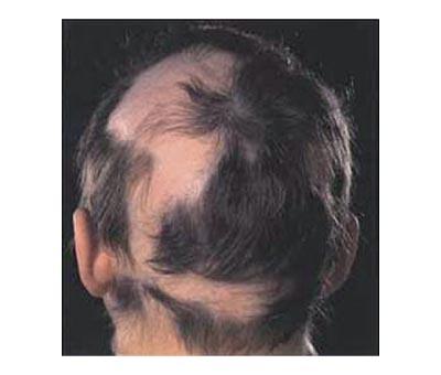 Therapie Alopecia Areata