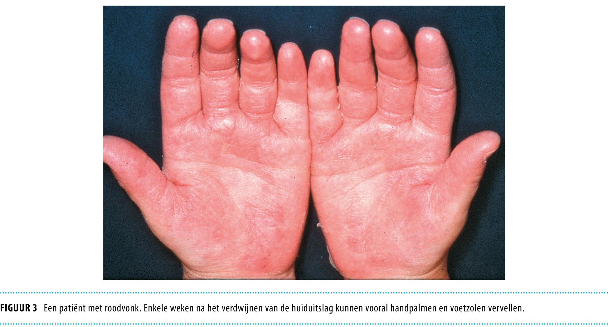 Kinderziekten Met Vlekjes Nederlands Tijdschrift Voor Geneeskunde