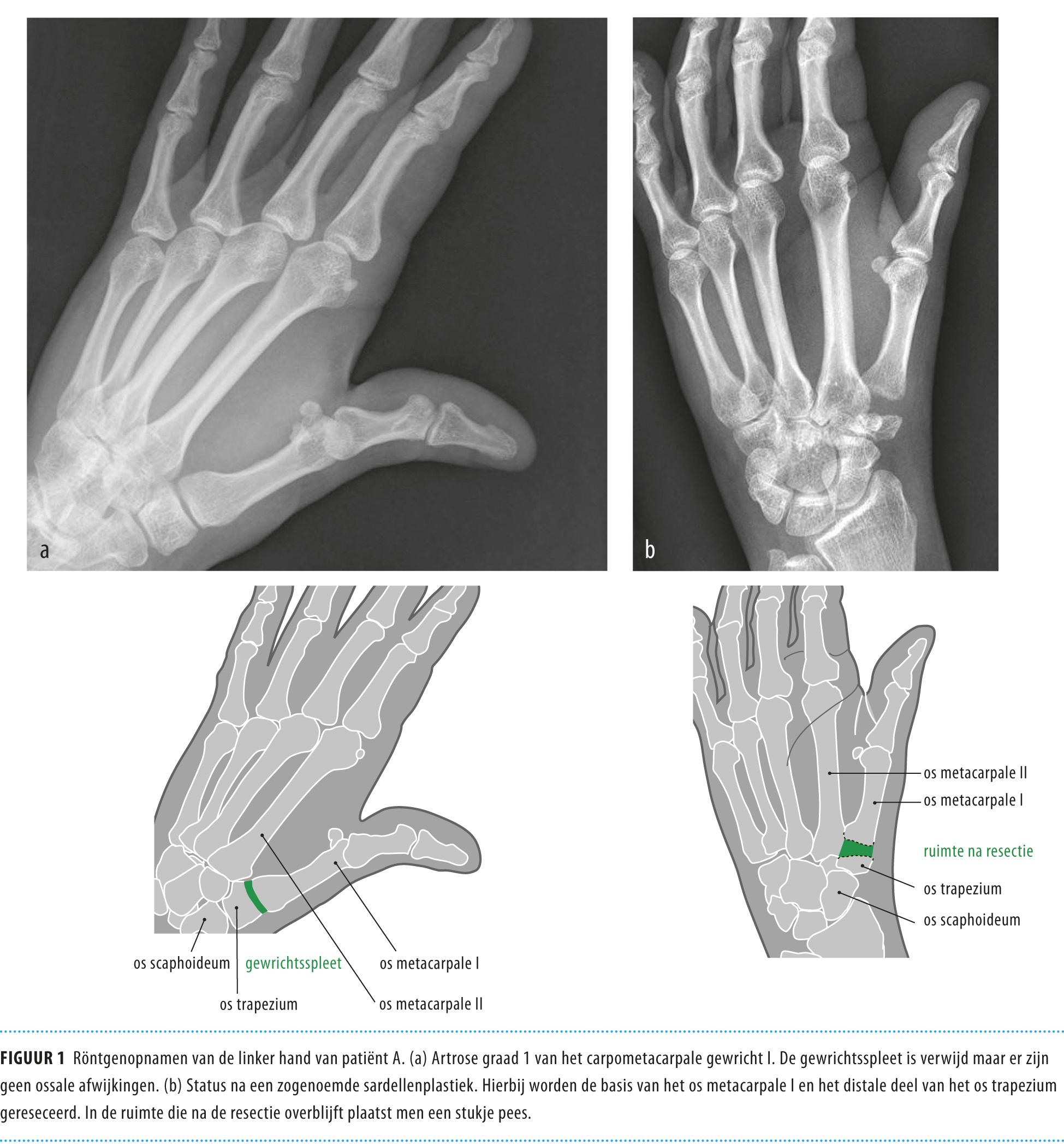 Behandeling Van Artrose Van De Duimbasis Nederlands Tijdschrift