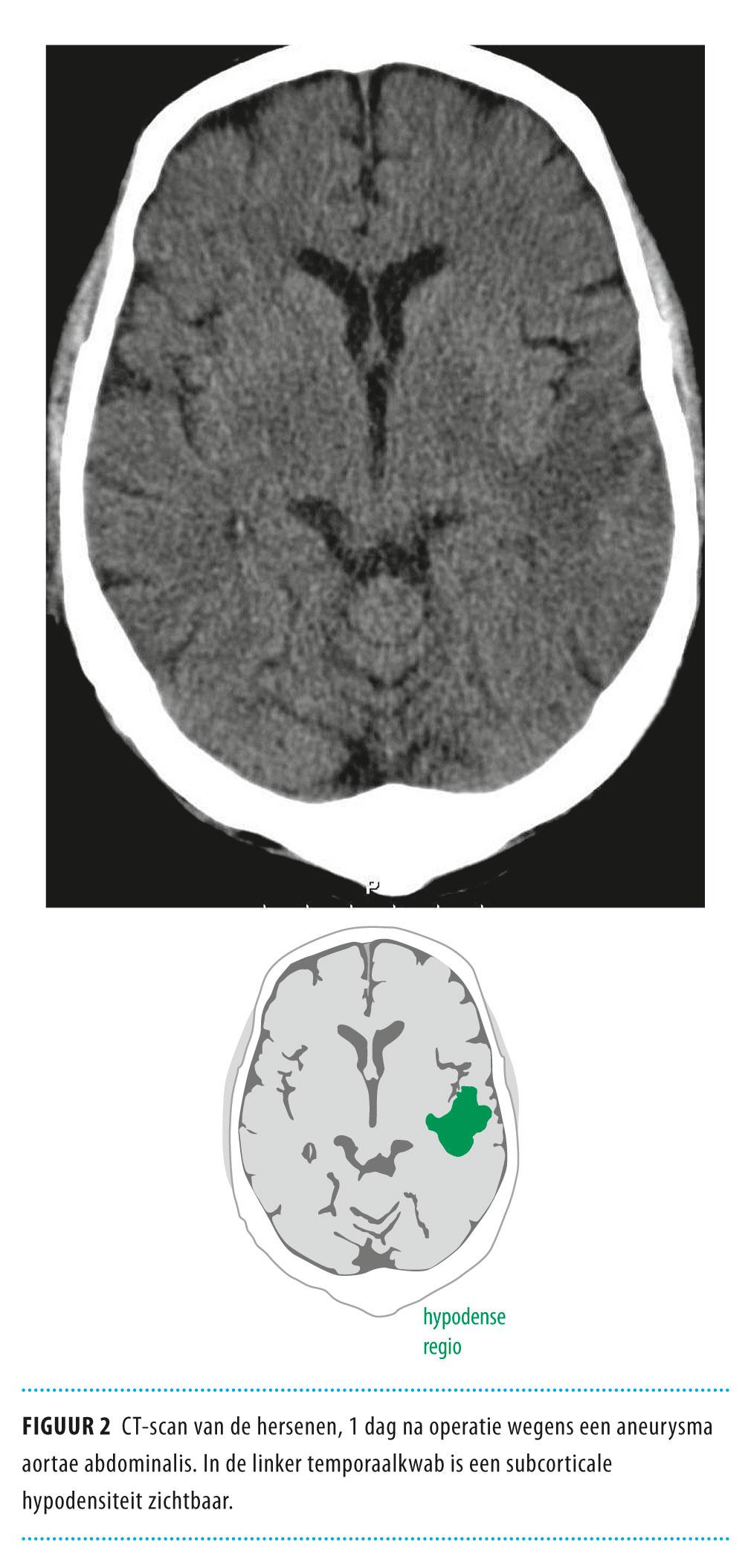 hypodensiteit hersenen