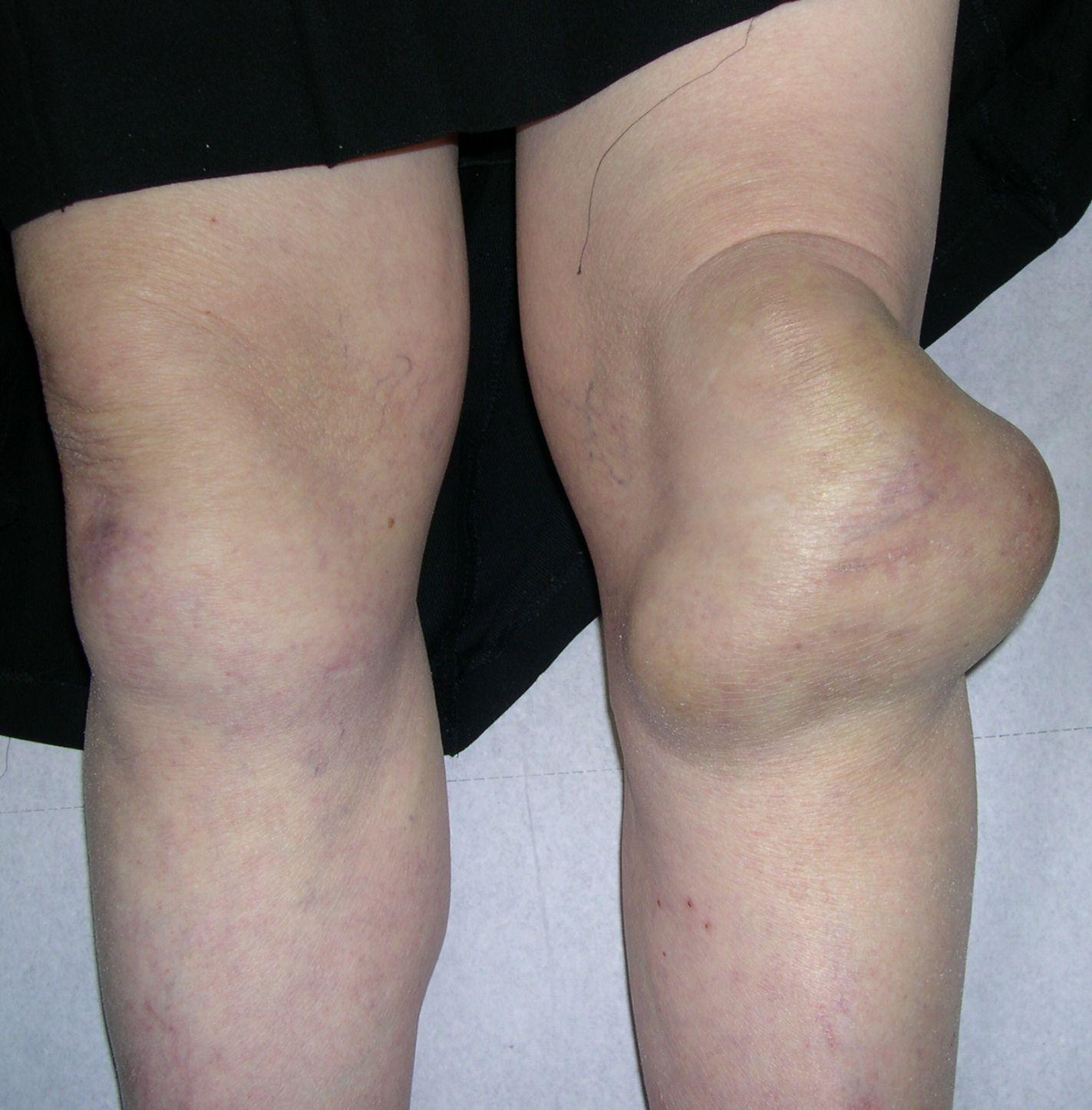 Een Vrouw Met Een Zwelling Van De Knie Nederlands